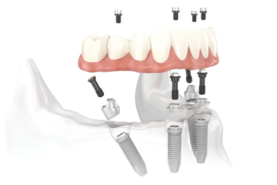 Implant Bridge (All-On-4)