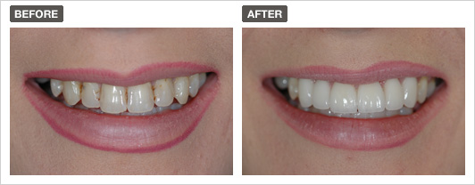Before and after smile 1