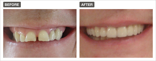Before and after smile 2